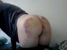 Very bruised bum