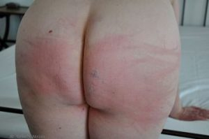 Woman bent over bed with bruises and welts on her bottom