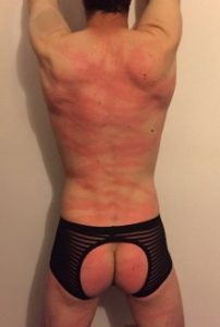 Man with whip marks all over his back