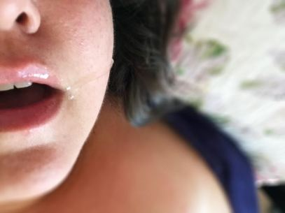 womans mouth open with saliva running down her cheek