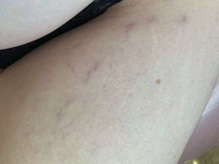 Stretch marks on womans thighs